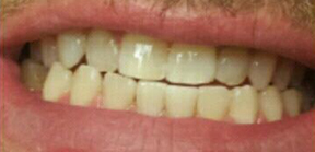 After Dental Work 3a Monmouth County NJ