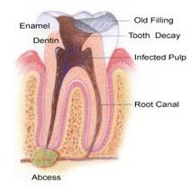 Root Canal Services Jackson New Jersey